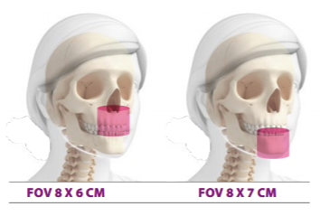 FOV 8X6 e 8X7