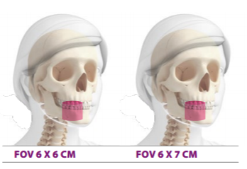 FOV 6X6 e 6x7