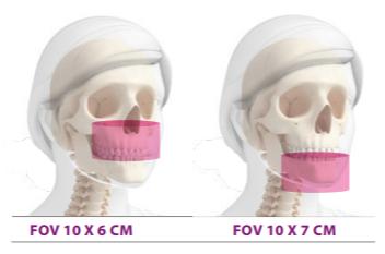 FOV 10X6 e 10X7